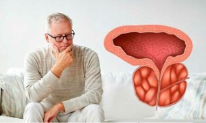 Prostatitis and prostate cancer